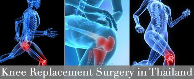 total-knee-Joint-Replacement-thailand