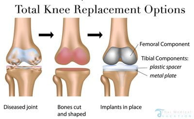 total-knee-replacement-surgery-bangkok