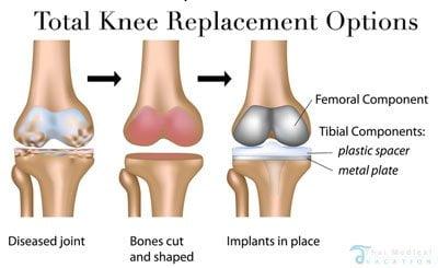 total-knee-replacement-surgery-bangkok