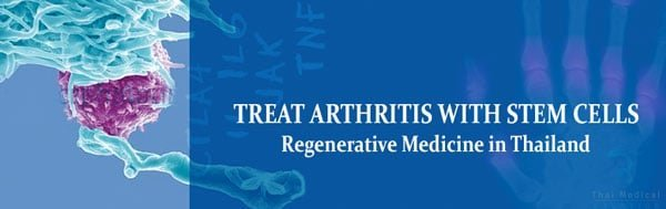arthritis-treatment-stem-cells