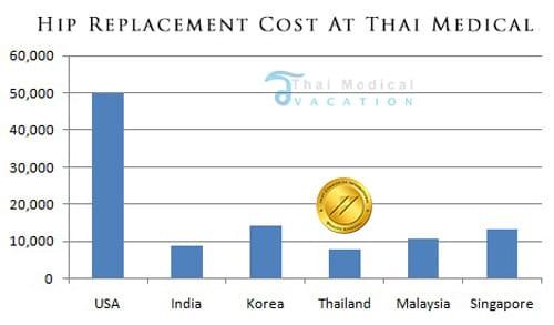 hip-replacement-cost-comparison-tmv