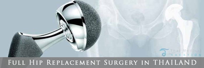 total-hip-surgery-replacement-costs-thailand