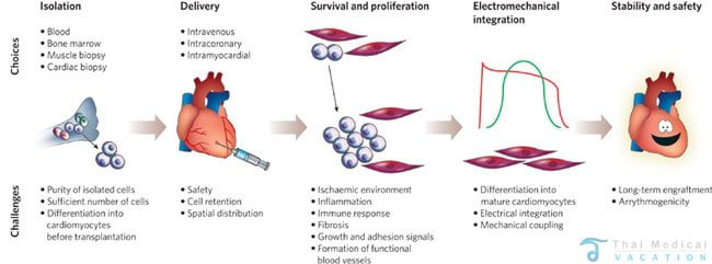 Stem Cell Therapy for Heart