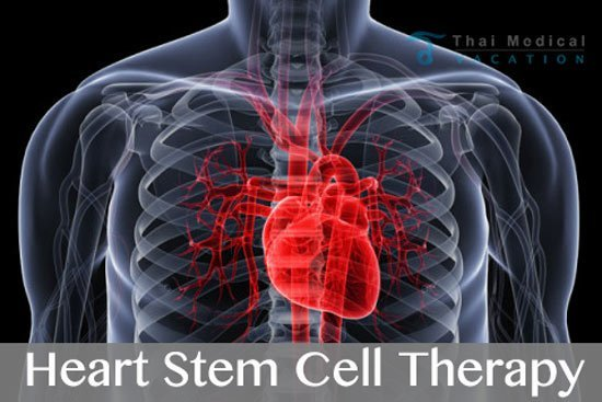 heart-stem-cell-transplants