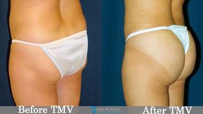 stem-cell-butt-enhancement